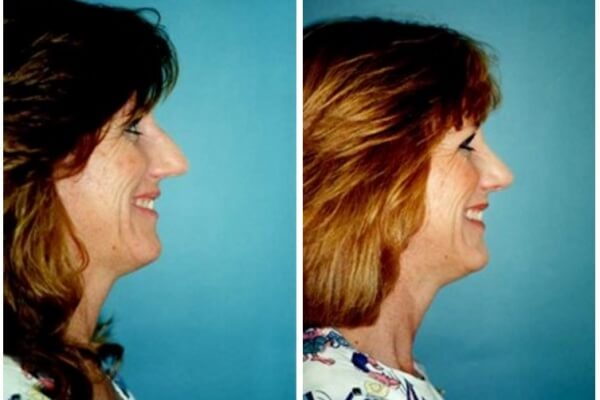 CoolSculpting Eliminate Stubborn Fat Without Surgery