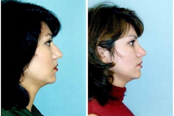 Rhinoplasty Nose Surgery Pleasanton California Before After Photos