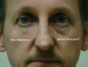 restylane-dr-gray-eyes